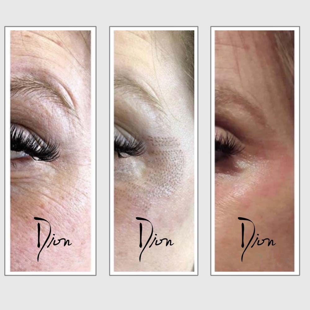 Fibroblast Skin Tightening Online Course - Esthetic World Beauty